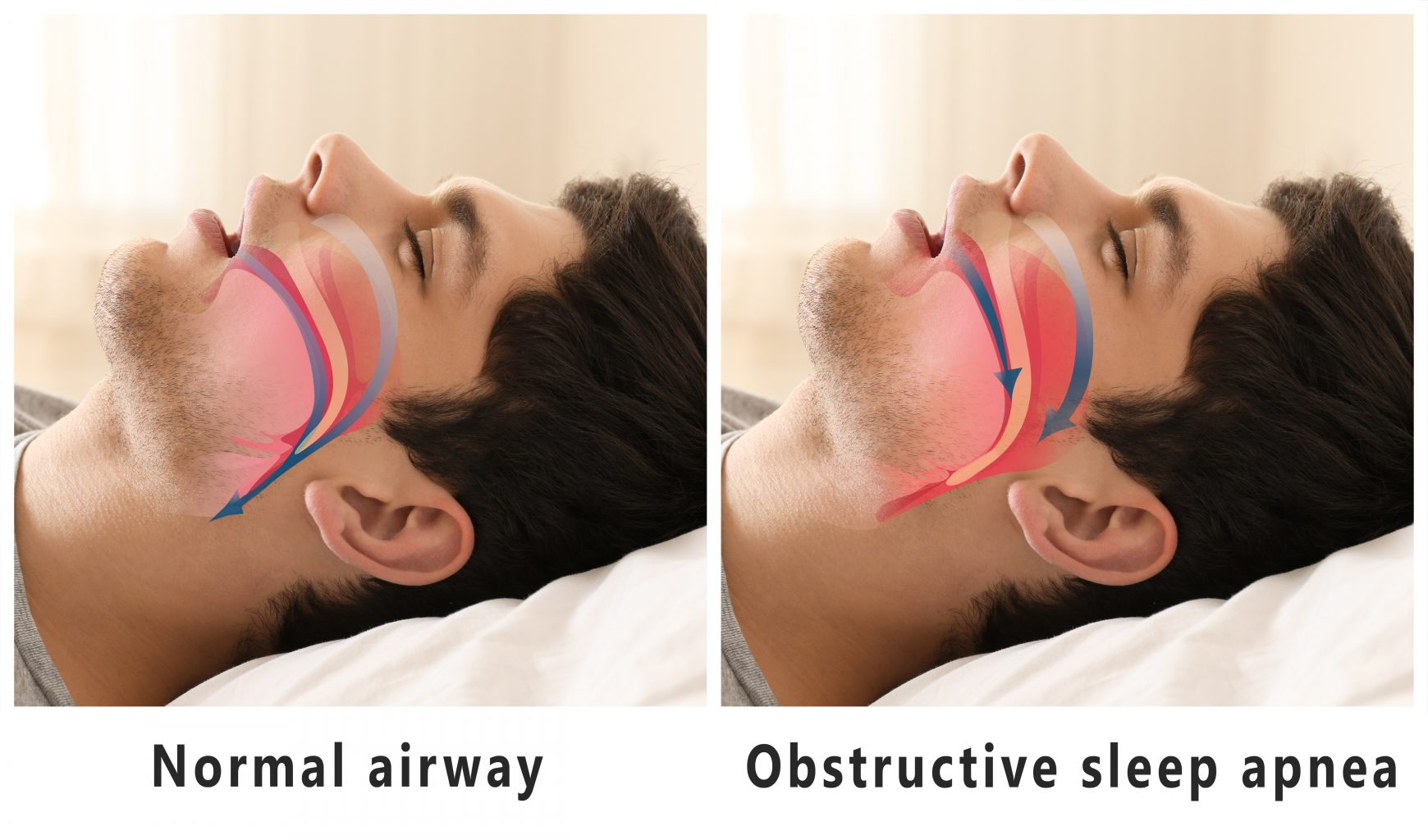 Snore Problem Concept. Illustration Of Normal Airway And Obstructive Sleep Apnea