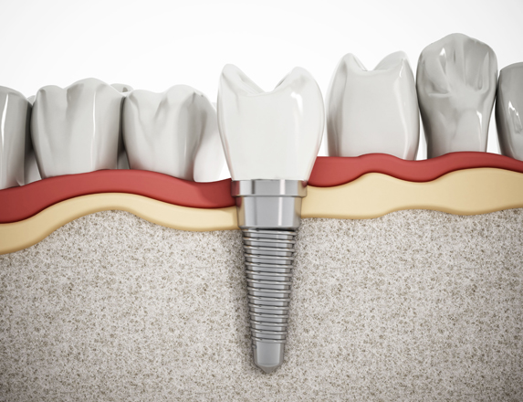 What Are Dental Implants.jpg