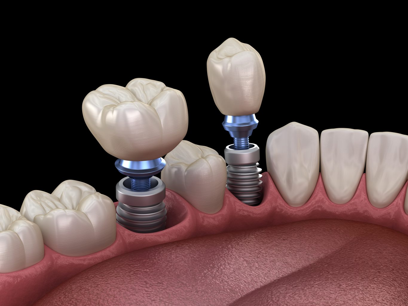 Premolar And Molar Tooth Crown Installation Over Implant Concept. 3d Illustration Of Human Teeth And Dentures